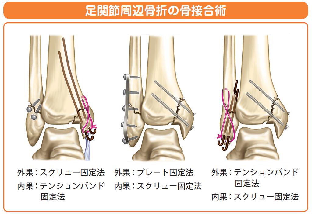 外 果 関節 骨折 足